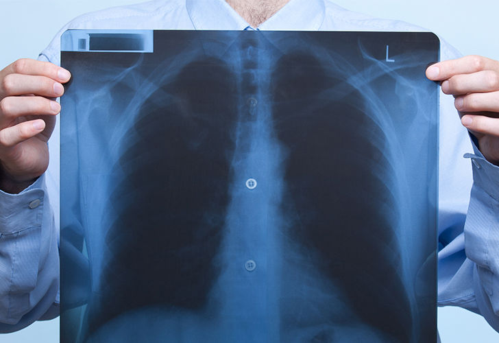 9-warning-signs-of-lung-cancer-you-might-ignore_10