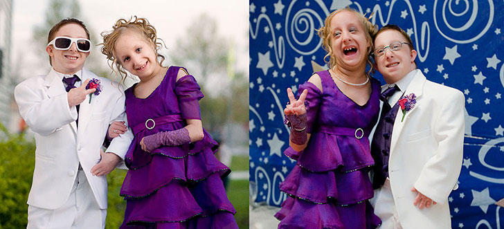 girl-with-dwarfism-inspires-people-around-the-world_15